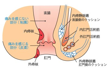 ① 痔核(ぢかく)いぼ痔